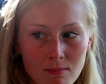 Доглядаємо за проблемною шкірою обличчя