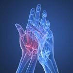 Ревматоїдний артрит і його лікування народними методами