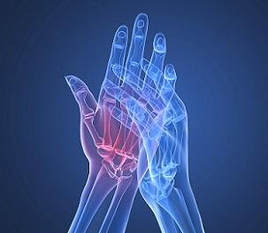 Ревматоїдний артрит, його лікування