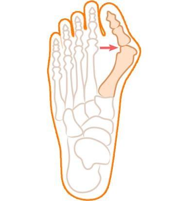 Кісточки на ногах - народне лікування.