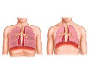Емфізема легень в дітей.