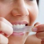 Як вдома відбілити зуби?