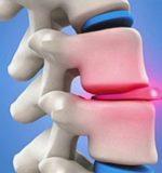 Симптоми і лікування грижі міжхребцевих дисків