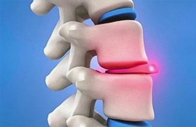 Міжхребцева грижа - симптоми і лікування.