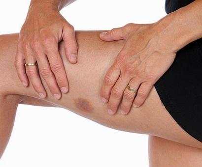 Як можна лікувати гематому на нозі.