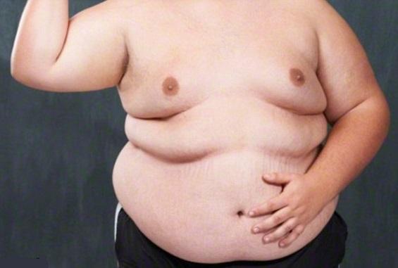 Як впливає ожиріння на здоровя.