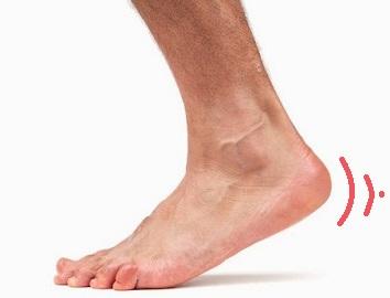 Якщо пекуча чи гостра біль в стопі ноги, або між пальцями, що робити