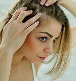 Причини і лікування випадання волосся.